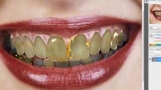 How to make white teeth hideous Thumbnail