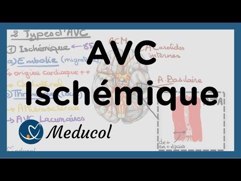 AVC ischémique: causes, embolie cérébrale, AVC thrombose et AVC jonctionnel