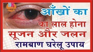 आखों का लाल होना सुजन दर्द जलन से छुटकारा पाने का रामबाण घरेलु उपचार