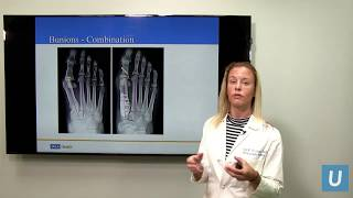 Bunions & Hammertoes - Joan Williams, MD | UCLAMDCHAT Webinars