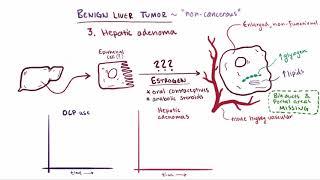 Benign liver tumors   causes, symptoms, diagnosis, treatment & pathology