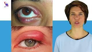 Se feno olhos livrar vermelhos de como inchados do de febre
