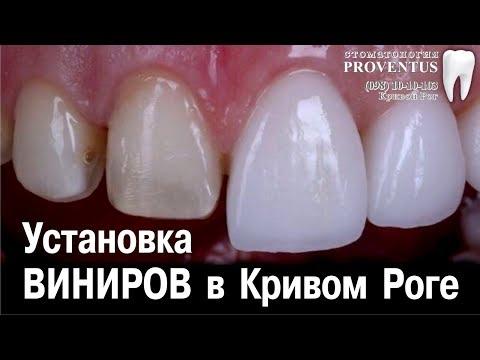 Где поставить виниры на кривые зубы: Украина, Кривой Рог, клиника Провентус