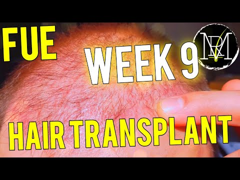 3500-grafts-9-weeks-result-fue-hair-transplant-2020