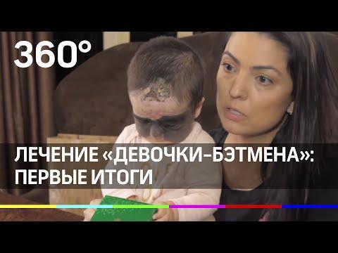 """Мама """"девочки-Бэтмена"""" рассказала о лечении в России"""