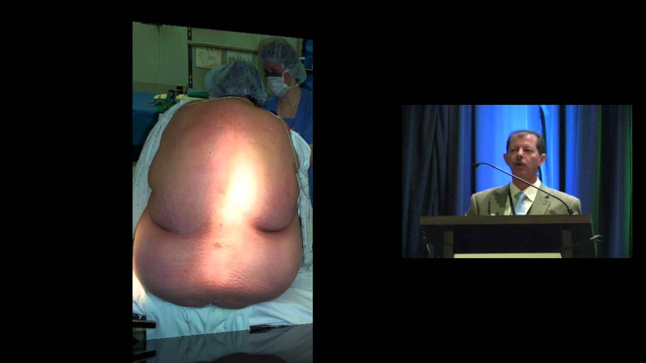 Anesthesia for Cesarean Delivery in the Obese Patient ...