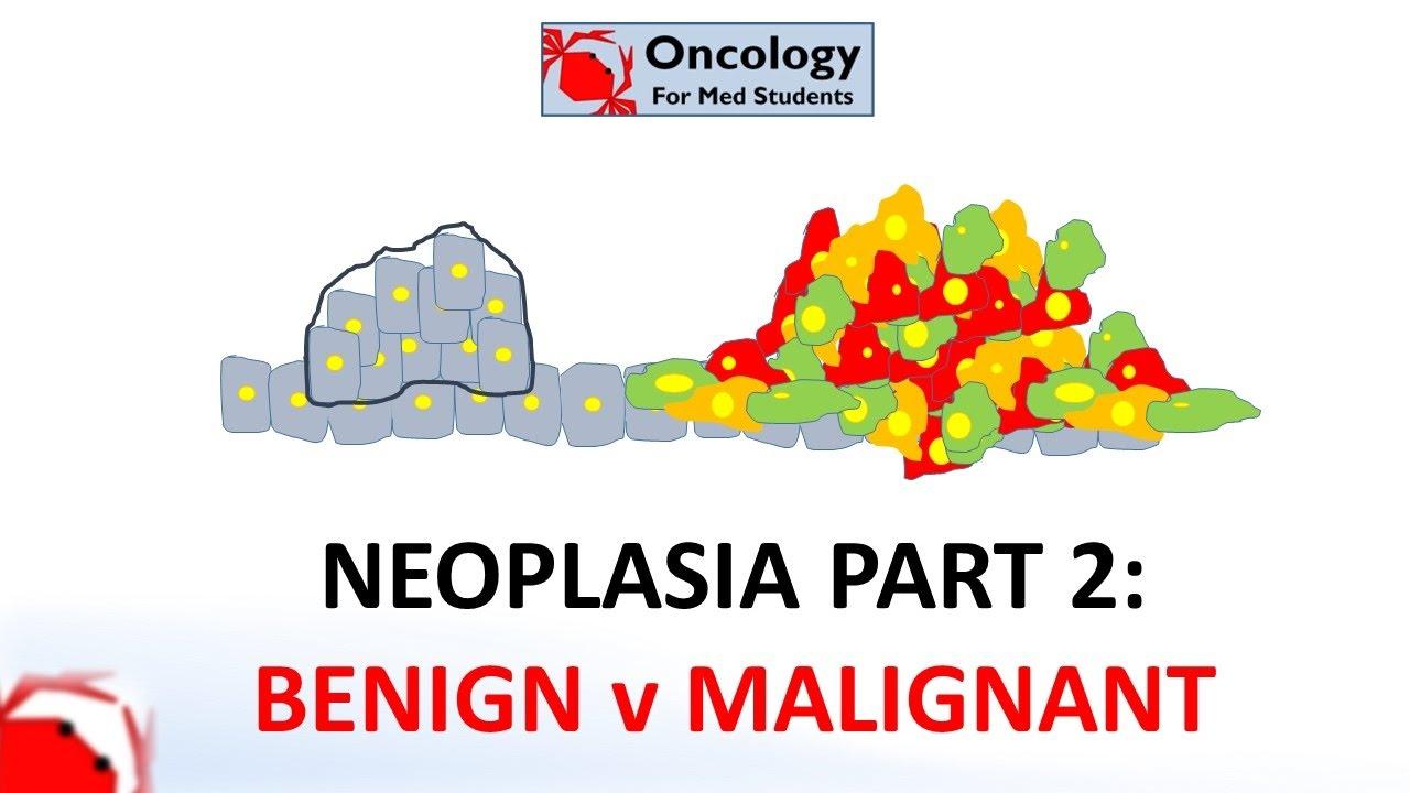 cancer neoplasia benigna