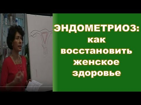 Эндометриоз:  как восстановить женское здоровье, - гинеколог-эндокринолог Ирина Мороз