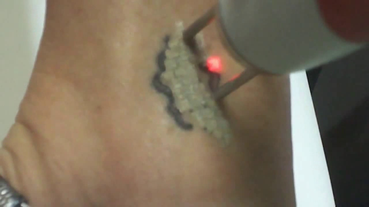 Laser Tattoo Removal Results After First Treatment Youtube