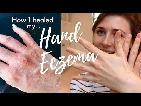 HOW I HEALED MY HAND ECZEMA | HEAL ECZEMA NATURALLY