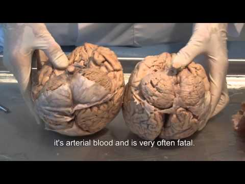 Meniniges and Ventricles of the brain
