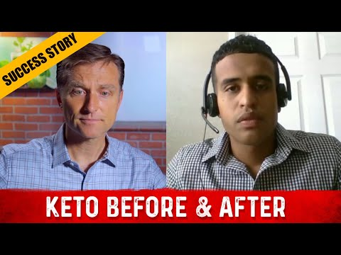 Before & After: Dr. Berg Skype Interview: Johnny Belisle (Ketosis & Intermittent Fasting)