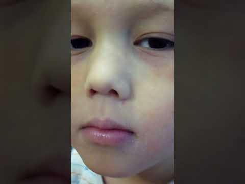Аллергическая реакция или химический ожог? Умывайте после прогулки лицо детей.