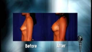Breast Augmentation - Before and After Plastic Surgery Thumbnail