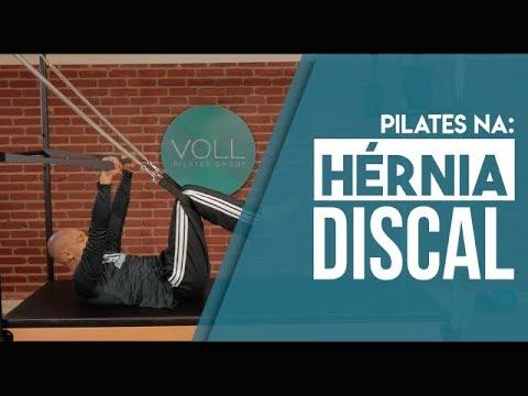 Exercício de Pilates para Hernia Discal | Keyner Luiz