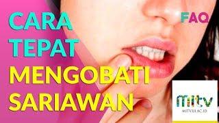 Penyakit gigi dan mulut ternyata dapat menyebabkan penyakit sistemik, baik dari saluran pernafasan, .