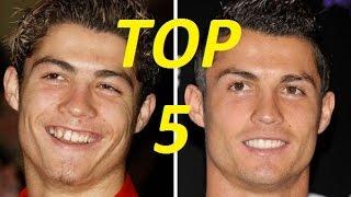 أشهر 5 لاعبين قاموا بعمليات تجميل لمظهرهم