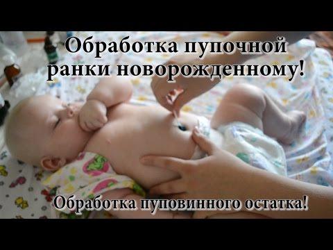 Обработка пупочной ранки новорожденному и пуповинного остатка! УЗНАЙТЕ АБСОЛЮТНО ВСЕ ЗА 12 МИНУТ!