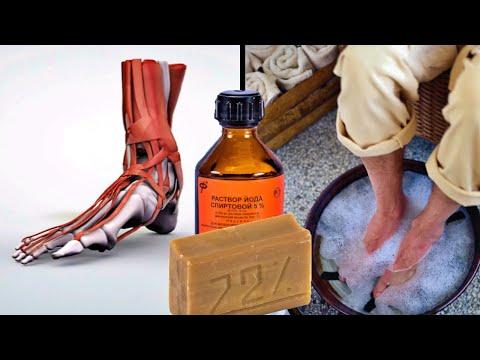 Как побороть боль в ногах за 12 дней? Поможет горячий раствор хозяйственного мыла с йодом