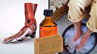 Как побороть боль в ногах за 12 дней Поможет горячий раствор хозяйственного мыла с йодом