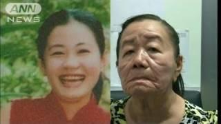 26歳女性が「80代の顔」に・・・謎の病 皮膚に何が?(11/12/16) ロンバーグ病 検索動画 4