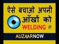 Welding effect on eyes - Welding effect on health