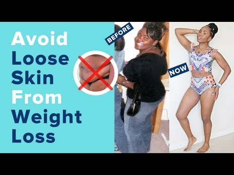 How to Avoid Loose Skin DURING and AFTER Weight Loss || Skin Removal and Tightening