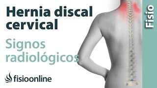 Hernia discal cervical - Signos radiológicos
