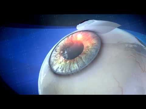 Laser Eye Surgery - Resurfacing of the Cornea - 3D Medical Animation || ABP ©