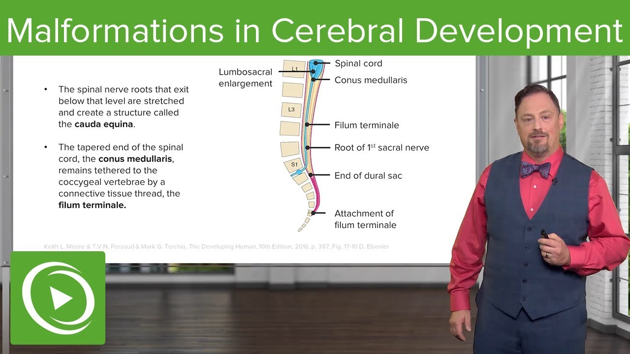 Malformations in Cerebellar Development – Embryology | Lecturio