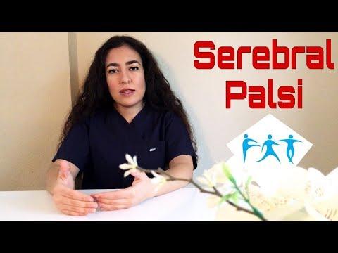 Serebral Palsi (Cerebral  Palsy)