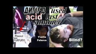 Antifa Used Acid Last Summer -  Baked Alaska Maced & May be Blind