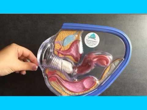 Tampon im Vergleich Menstruationstasse / Tagefänger im Körper