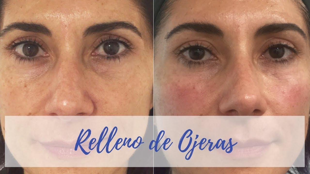 Ojeras hundidas antes y despues de adelgazar