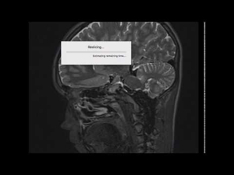 MRI EPI Protocol - Стандартный протокол МР сканирования при судорожном синдроме (Эпилепсия)