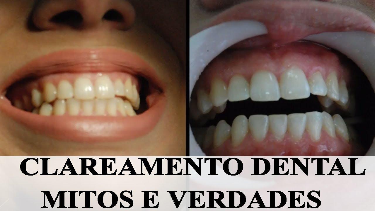 Clareamento Dental Com A Dr Fabi Duvidas Sobre O Procedimento No