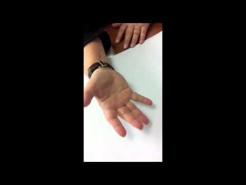 Doigt à ressaut (trigger finger)