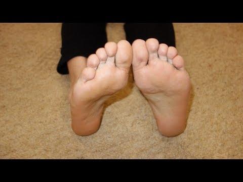 грибок лечение в домашних условиях
