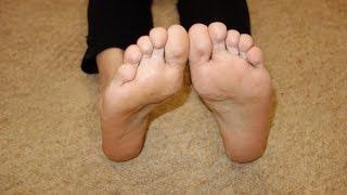 Грибок на ногах  лечение в домашних условиях| Как убрать запах ног| #отгрибковнаногах #edblack