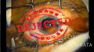 Olhos melhor círculos sob os tratamento para