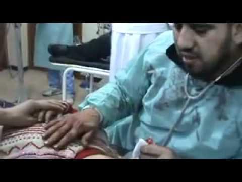 شام حمص باباعمرو طفلة مصابة بالرأس تلفظ أنفاسها