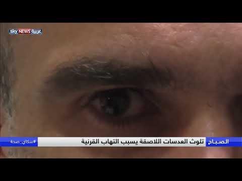 العدسات اللاصقة قد تسبب فقدان البصر  - 09:55-2018 / 9 / 24