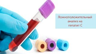 ложноположительный анализ на гепатит С