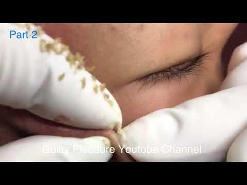 (Part 2) Close-up blackhead removal - Blackhead extractions and Blackhead Squeeze