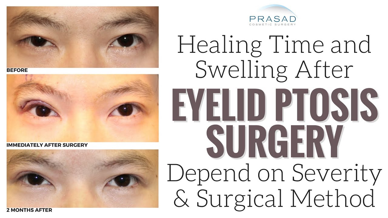 Factors That Affect Healing Time And Temporary Swelling Of Eyelid