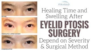 Factors that Affect Healing Time and Temporary Swelling of Eyelid Ptosis Surgery