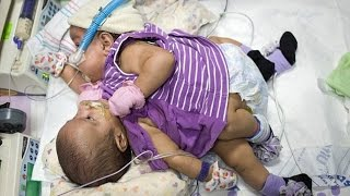 Texas doctors plan to separate conjoined twin girls who share a liver, intestines and heart lining