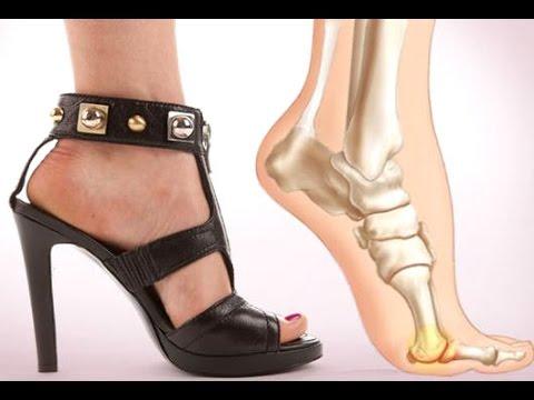 Mẹo giảm đau chân khi đi giày
