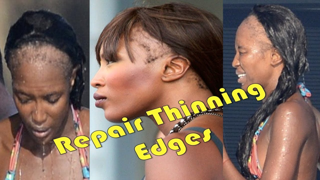 How To REPAIR THINNING HAIR EDGES Thicken Hairline
