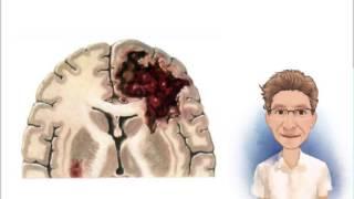 Cerebro coágulo sanguíneo para término el médico en